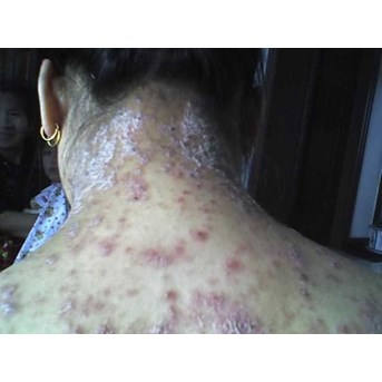 DRUG FOR TREATMENT OF DISEASES Psoriasis