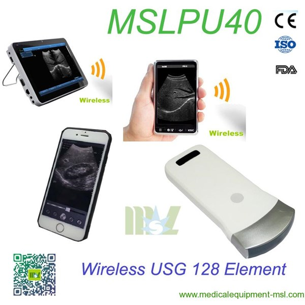 wireless ultrasound : wireless ultrasound probe ipad mslpu40-2